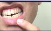 Malos hábitos dentales. Alere UANL